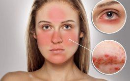 5 nguyên nhân gây dị ứng da mặt