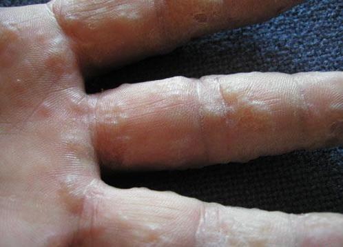 nguyên nhân gây ngứa ngoài da