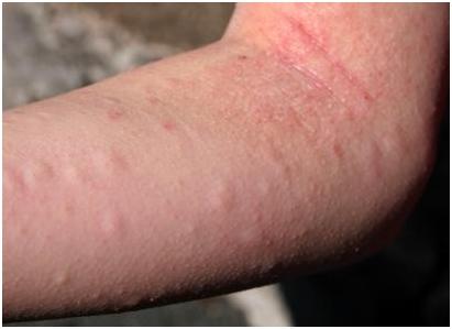 Có nên dùng Clopheniramin thường xuyên trị dị ứng mề đay
