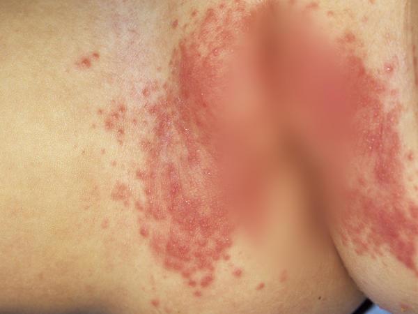 Bị nổi mẩn ngứa ở mông - Nguyên nhân và cách chữa