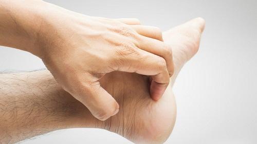Cách chữa dị ứng da ở tay chân nhanh nhất