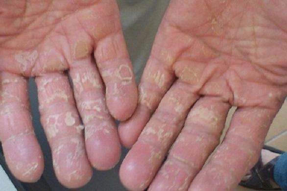 Da tay bị dị ứng xà phòng làm sao khỏi?