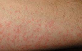 Nổi mẩn ngứa khắp người như muỗi đốt