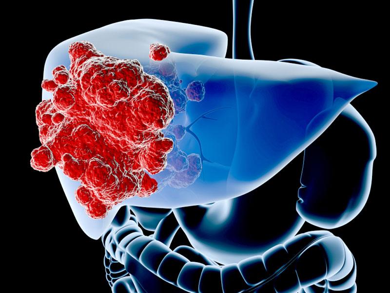 Nổi mẩn đỏ ngứa toàn thân có thể là dấu hiệu của ung thư gan