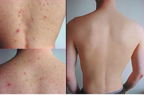 Bị nổi mẩn đỏ ngứa ở lưng nên làm gì?