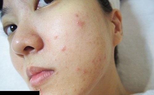 Nổi mẩn đỏ ngứa ở mặt và cách khắc phục nhanh