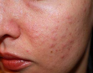 da mặt bị ngứa và sần
