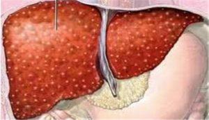hoạt động của gan suy yếu làm gan bị nhiễm độc