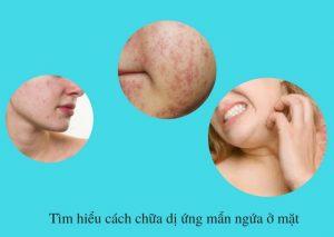 Cách chữa dị ứng mẩn ngứa ở mặt