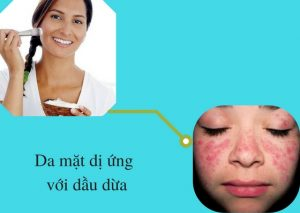 cách xử lý khi da mặt dị ứng với dầu dừa