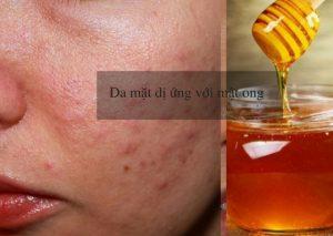 da mặt dị ứng với mật ong