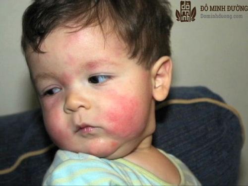 Điều trị mề đay mẩn ngứa ở trẻ nhỏ
