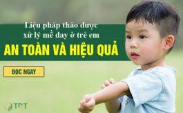Tiêu ban Giải độc thang an toàn với mề đay ở trẻ em