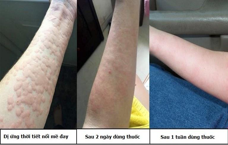 Hiệu quả trước và sau dùng thuốc Tiêu ban Giải độc thang