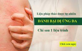 Bài thuốc điều trị dị ứng da