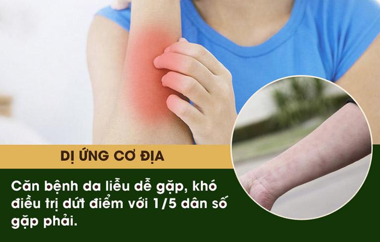 Dị ứng cơ địa có thể gây ra các triệu chứng nguy hiểm đến sức khỏe