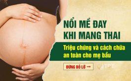 Nổi mề đay khi mang thai