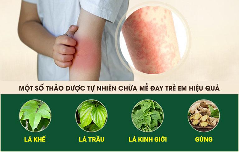 Mẹo dân gian dùng các thảo dược quen thuộc để chữa bệnh
