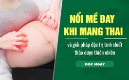 8 thảo dược quý chữa mề đay khi mang thai nổi tiếng lành tính ban nên biết