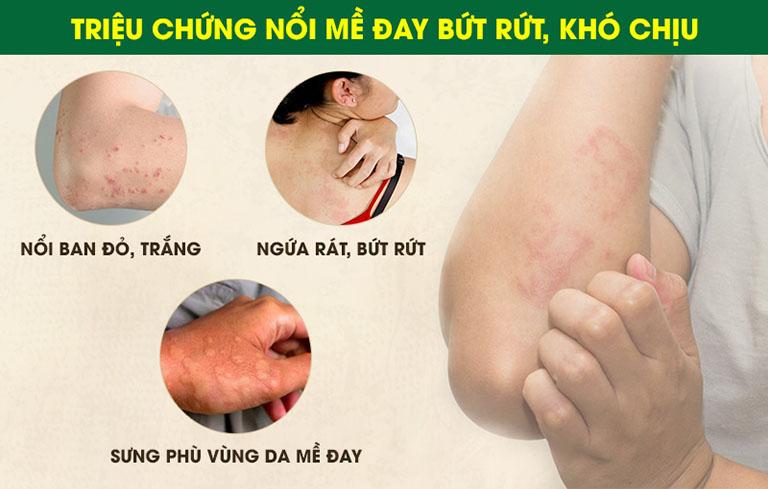 Có thể nhận biết bệnh qua một số triệu chứng thường gặp