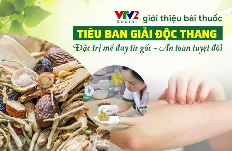 VTV2 giới thiệu bài thuốc Tiêu ban Giải độc thang đặc trị mề đay mẩn ngứa